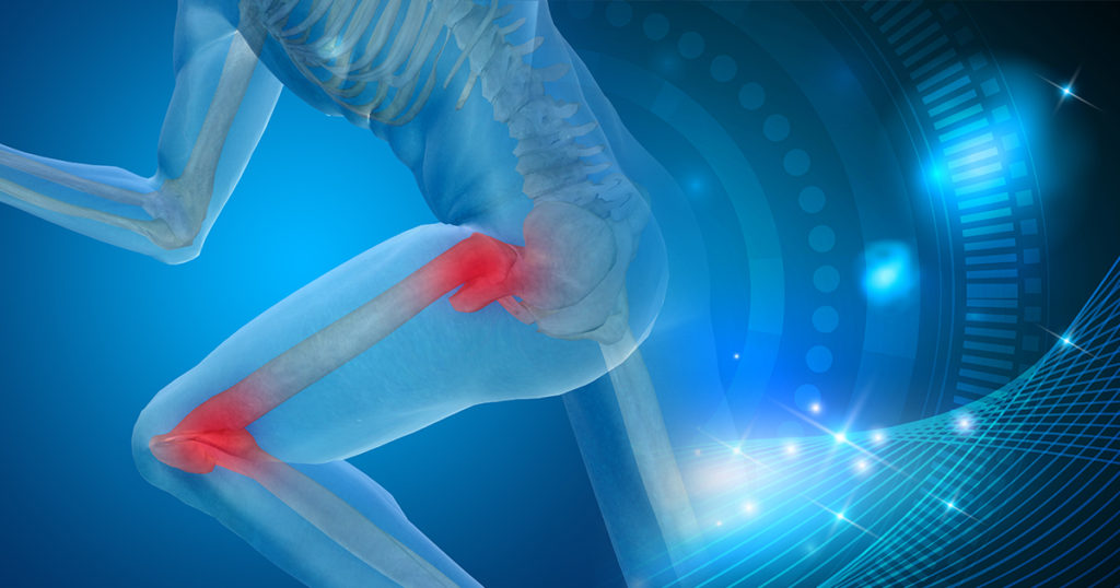 Regenerative Treatment Options for Arthritis of the Hip and Knee