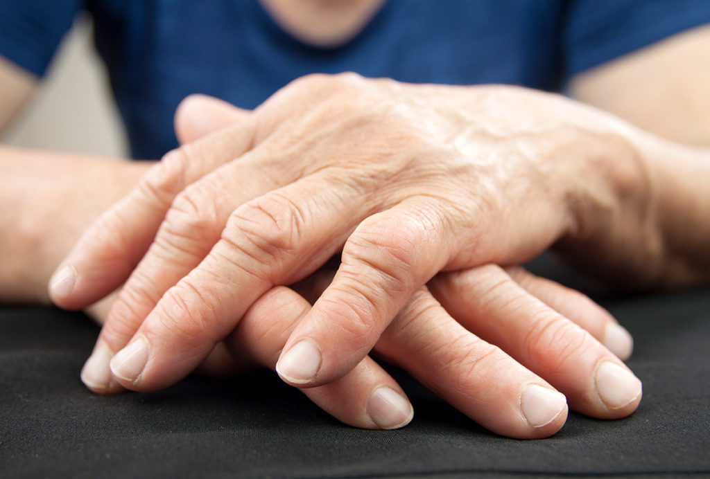 How to Manage Rheumatoid Arthritis Symptoms